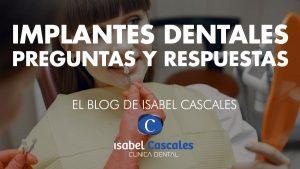 Implantes dentales preguntas y respuestas